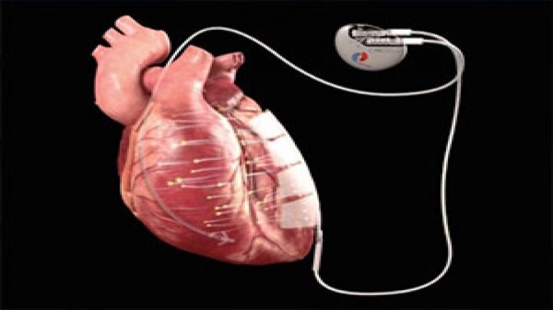 درمان بیماری قلبی با برق
